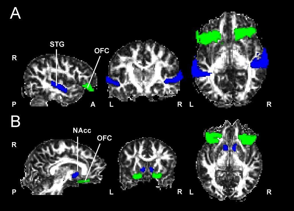 La estructura cerebral determina las diferencias individuales ante la sensibilidad musical - UB