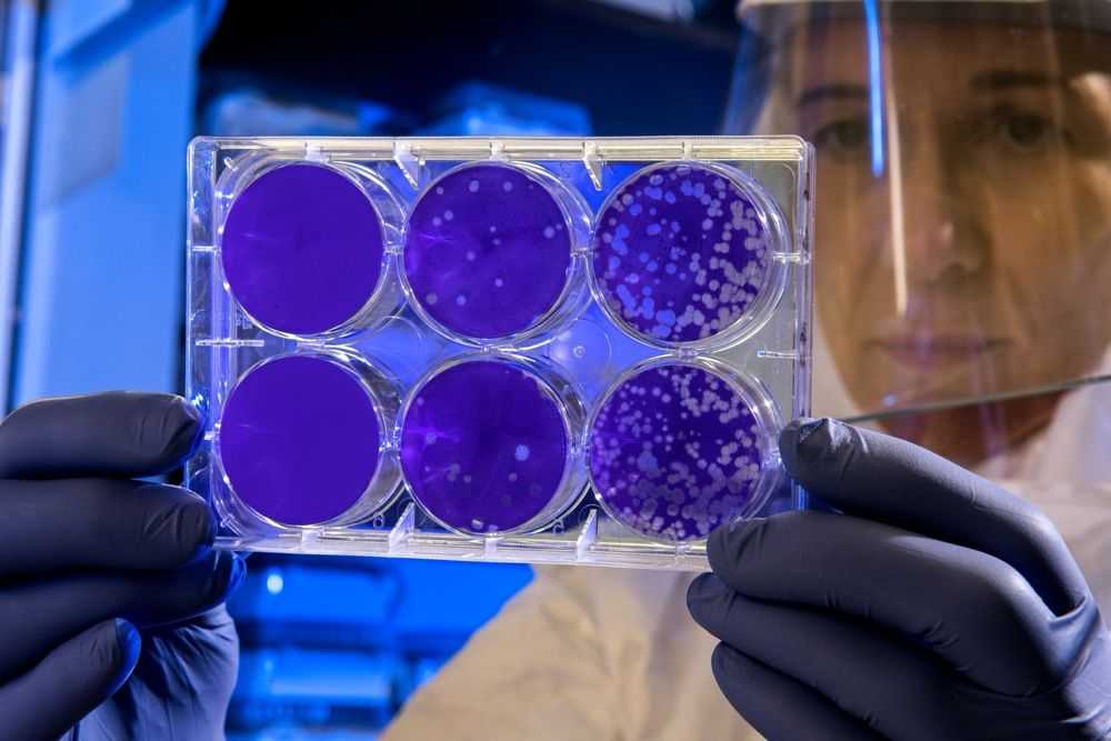Testes feitos na UFJF serão utilizados na investigação epidemiológica de Covid-19