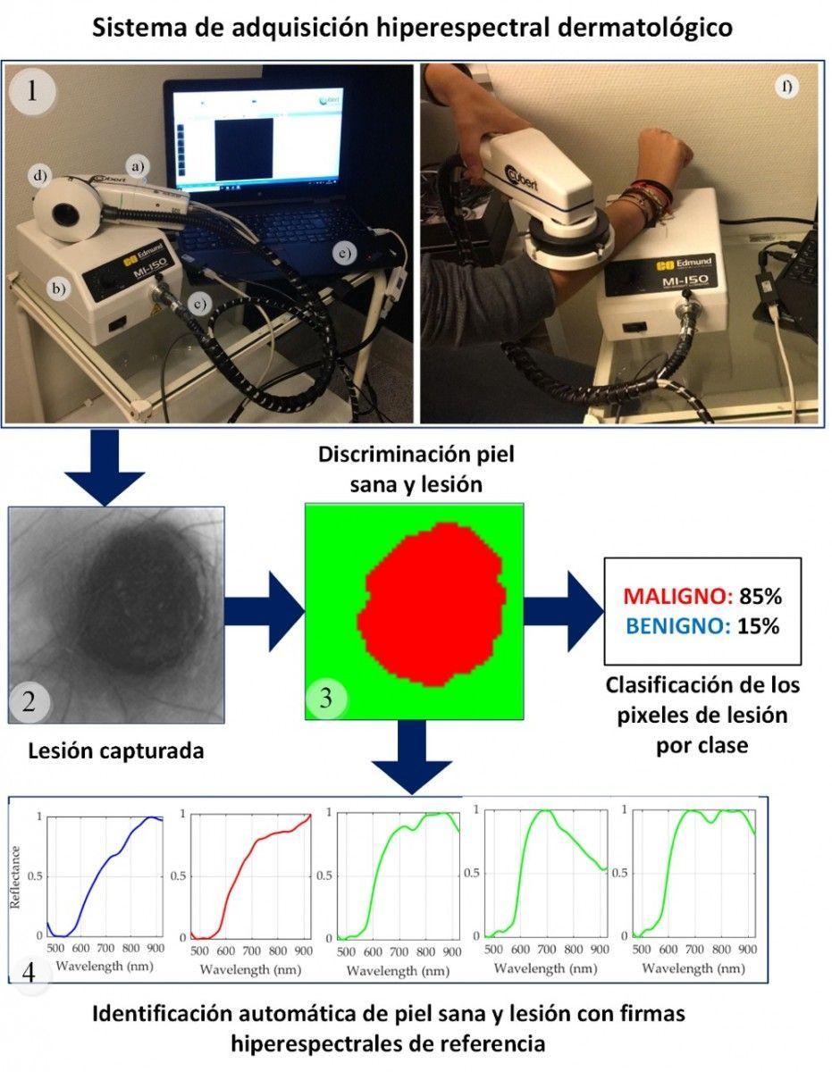 Investigadores del IUMA de la ULPGC crean una instrumentación hiperespectral no invasiva capaz de diagnosticar el cáncer de piel