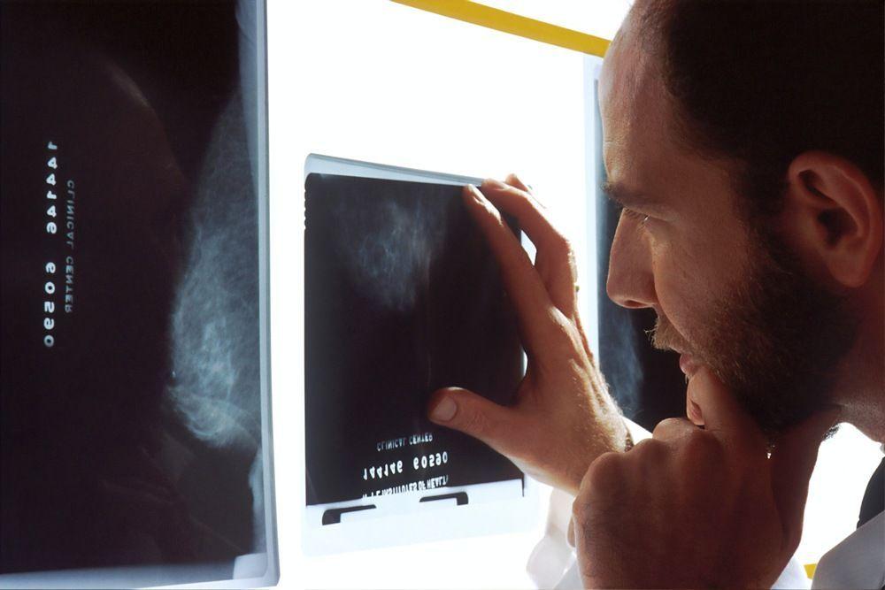 La toma de decisiones compartida entre paciente y médico mejora la calidad del proceso asistencial contra el cáncer de mama - UGR